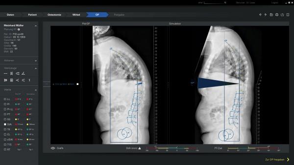 Spontech Vertaplan OP_Osteotomie